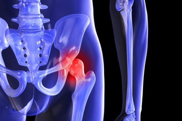 artroza articulației inferioare