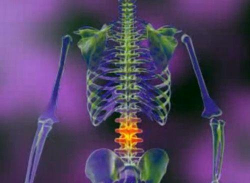 Tratamentul artrozei vertebrale toracice