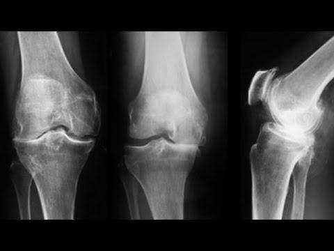 artroza genunchiului grad 3