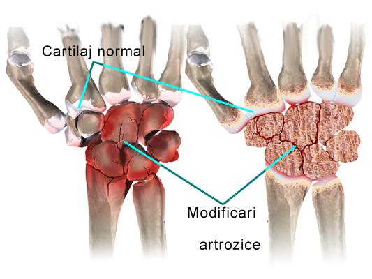 artroza radială