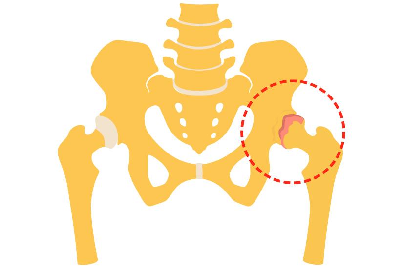 artroza secundară a articulației șoldului