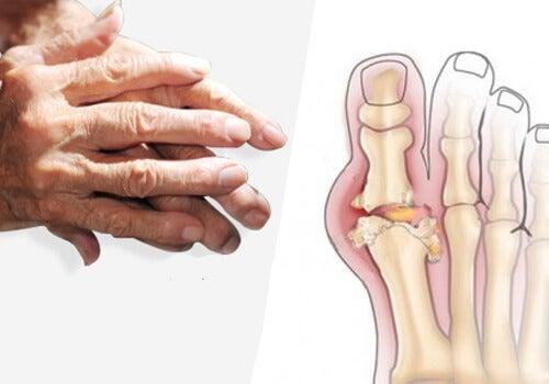 artroza tratament cu gută