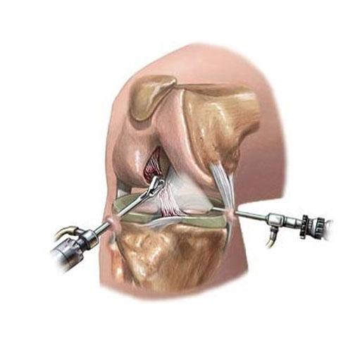tratamentul artroscopic al genunchiului
