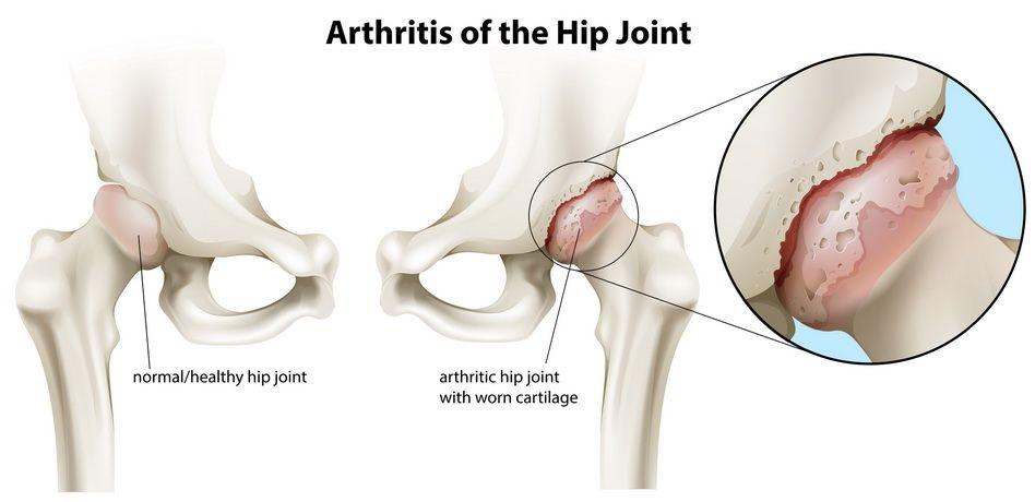 stadiul 1 deformând artroza articulației șoldului