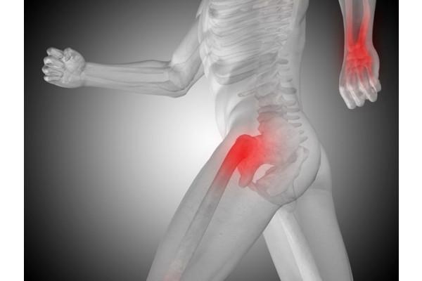 artrita purulentă a articulației șoldului provoacă