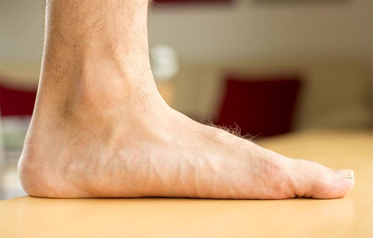 picioare plate și dureri articulare)