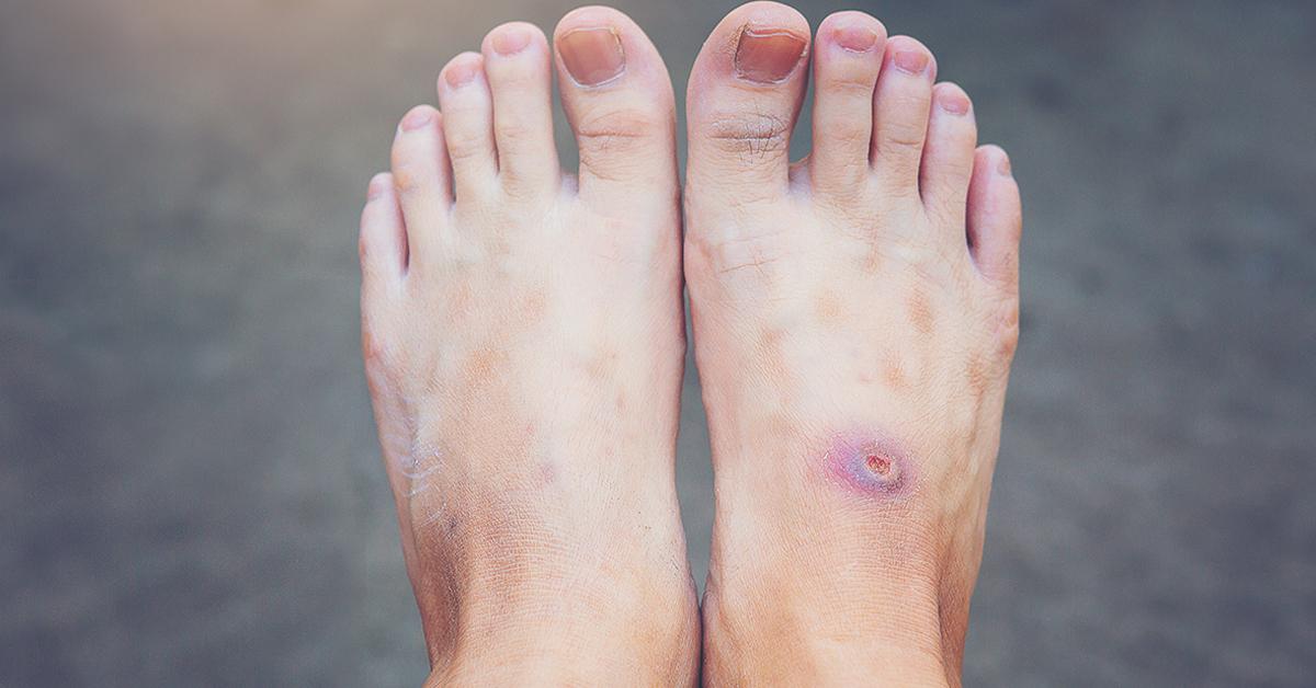 leziuni la nivelul piciorului)