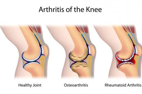 bandajează articulația pentru artrită)