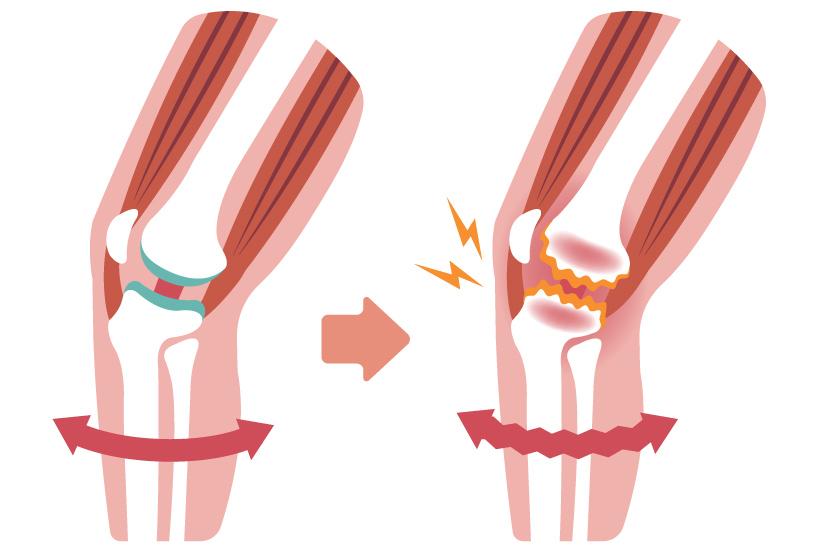 exacerbarea tratamentului cu artroza piciorului)