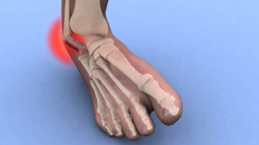 refacerea genunchiului după entorsă)