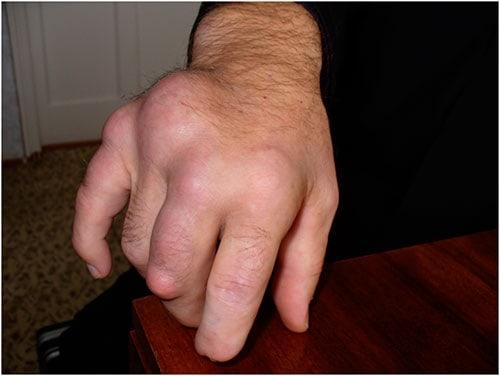 o articulație de la încheietură doare tratament de repaus articular