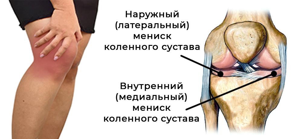 Кинетотерапия - Terramed