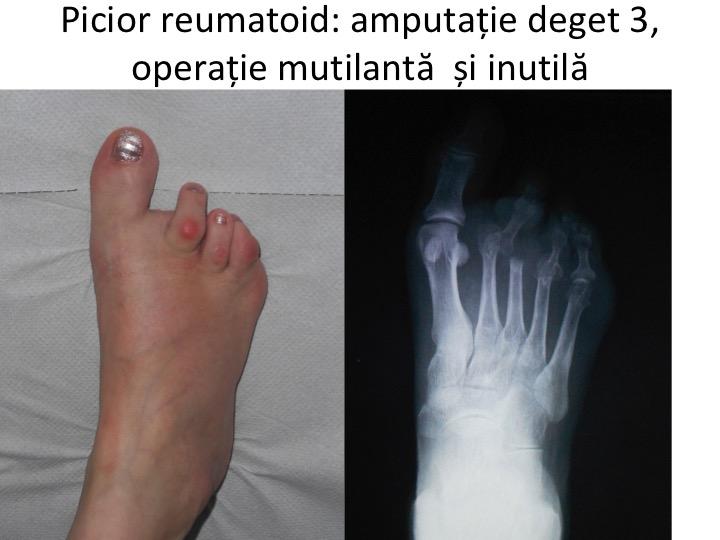 inflamația articulațiilor piciorului și gleznei cum se reduce durerea în artrita genunchiului