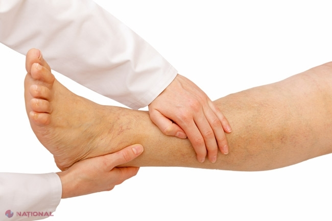 boala articulației degetelor de la picioare