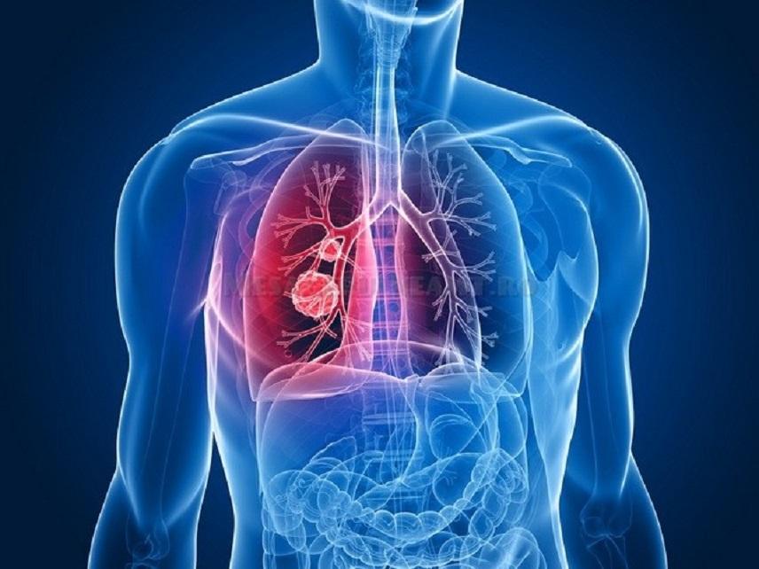 Boala articulației tuberculoase