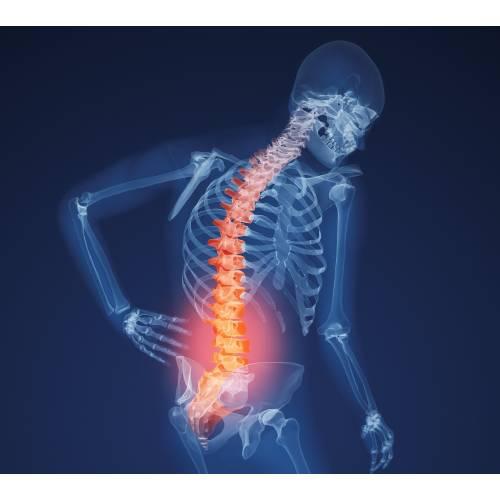 boli ale oaselor și articulațiilor)