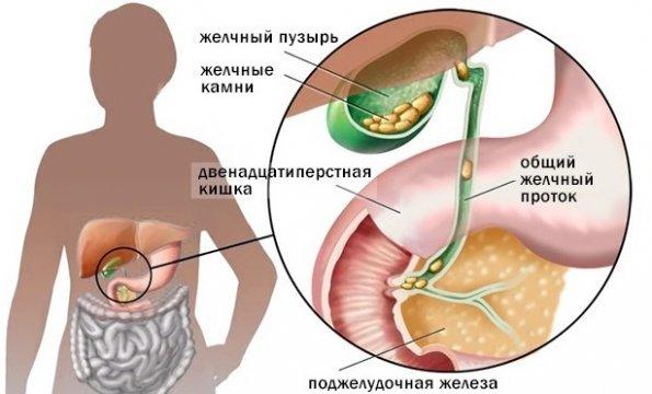 boli articulare în patologia sugarilor)