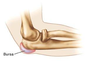 bursita metodelor de tratament ale articulației cotului