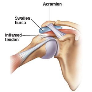 Bursita subacromială a simptomelor articulației umărului și tratamentul
