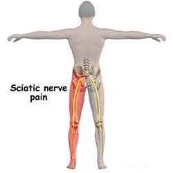 dureri de genunchi ciupite de nerv testele reumatice sunt normale și durerea articulațiilor