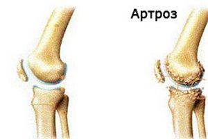 Artroza extremelor inferioare - simptome și tratament, cauze ale bolii