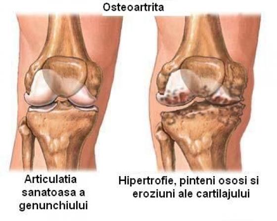 osteoartroza genunchiului care tratează)