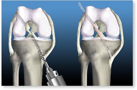 Ligamente cruciate ale articulației genunchiului