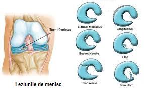 deteriorarea coarnelor posterioare ale meniscului articulației genunchiului
