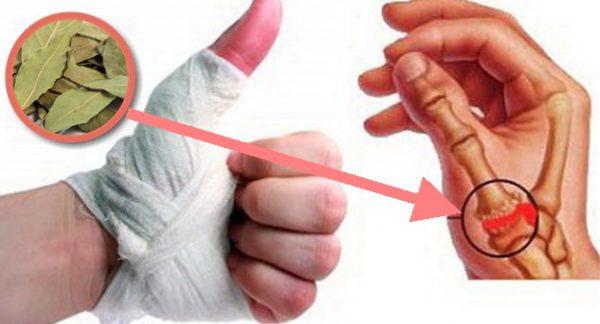 Durerea Articulatiilor - Tipuri, Cauze si Remedii, Remediu miracol al durerii articulare