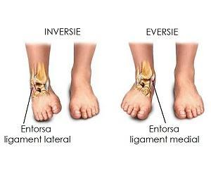 entorsa articulației genunchiului cum să tratezi)