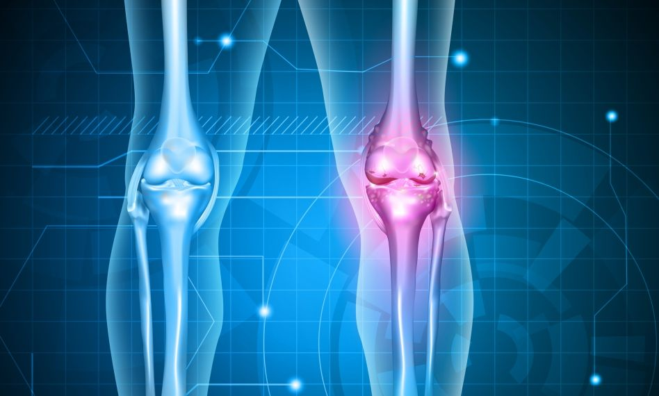 gonartroza de gradul 1 al preparatelor articulației genunchiului artroza infecțioasă a genunchiului