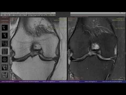cum se tratează osteoartroza deformantă a genunchiului