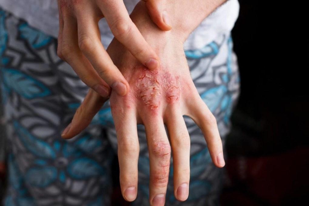 care tratează artrita psoriazisului)