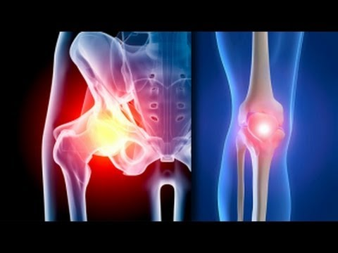 curățarea articulațiilor artroze