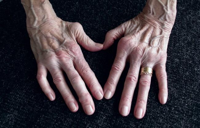 semne ale artritei reumatoide ale mâinilor)