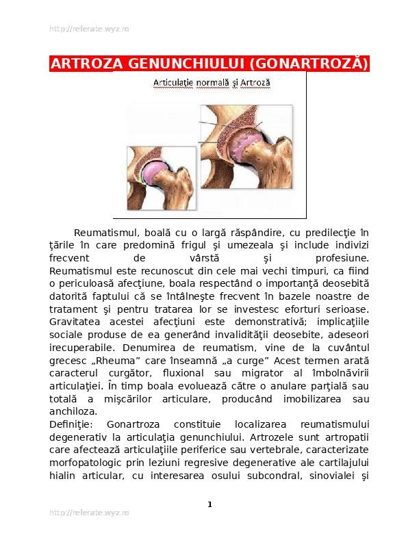 ce fel de boală a gonartrozei genunchiului