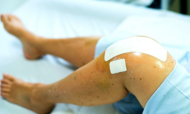 exercitii recuperare gonartroza cum să tratezi umflarea articulației degetului