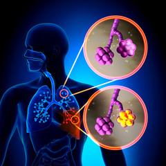 medicament pentru injecții de durere articulară falsă articulație a istoriei bolii gâtului femural