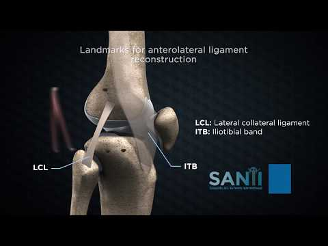 Modul de a trata artrita în articulațiile degetelor - Artrită crunch articulații