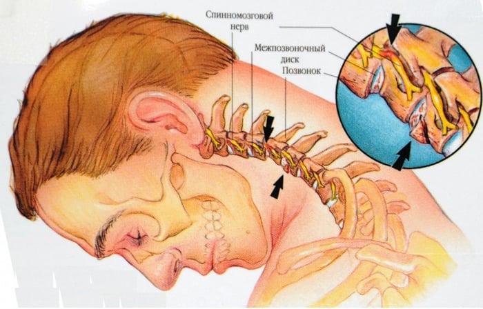 cu osteocondroza coloanei vertebrale, medicamentele sunt prescrise)