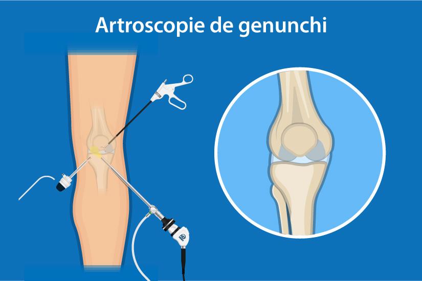 cum să tratezi o leziune la genunchi)