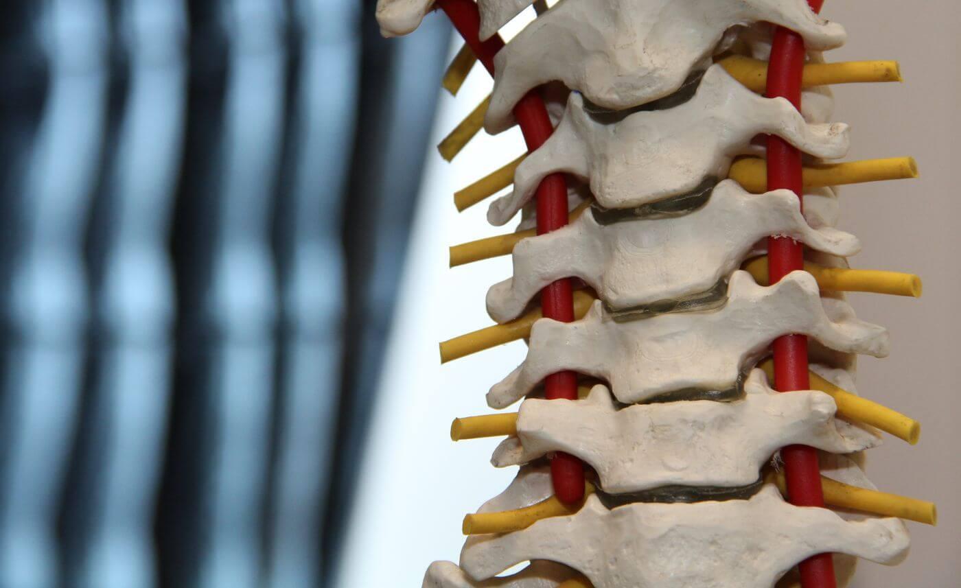 cum se tratează articulațiile și coloana vertebrală)