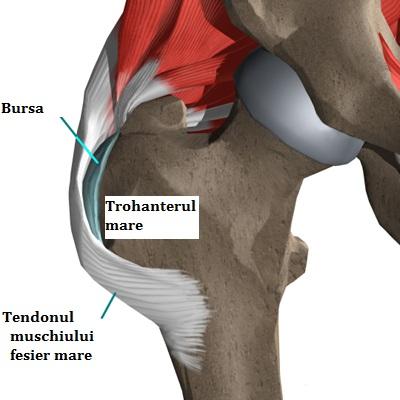 umflarea tendoanelor simptomelor șoldului)