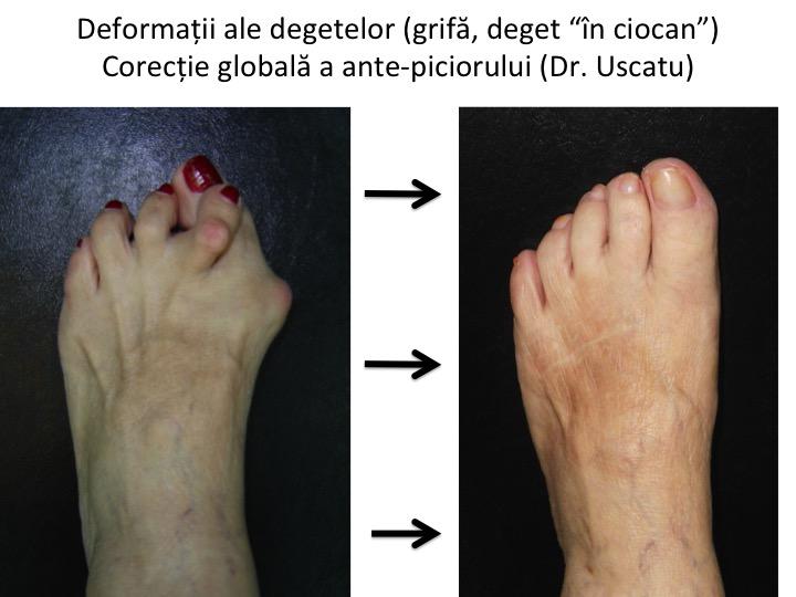 articulațiile degetelor de la picioare cauzele și tratamentul)