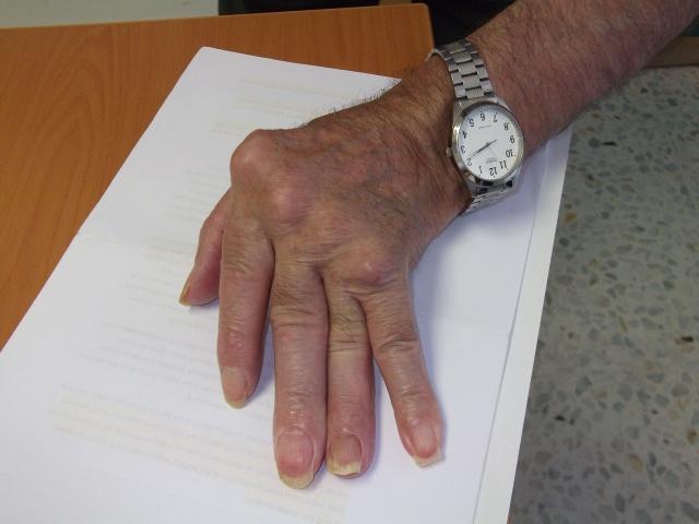cons. glucozamină condroitină