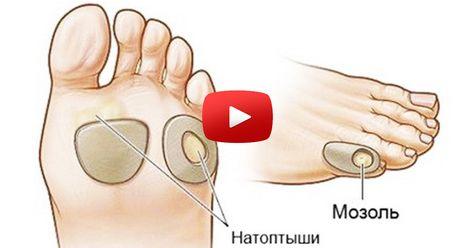 șold de șold pentru dureri musculare