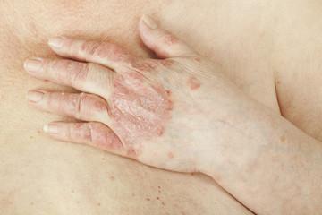 inflamația articulației degetului mare ce trebuie făcut ce alimente sunt dăunătoare cu artroza genunchiului