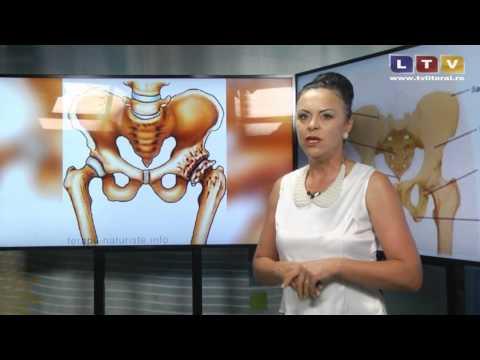 tratamentul cu artroză necrovertebrală s3-s7