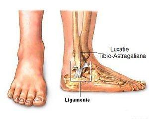 cauzele durerii ligamentare la gleznă