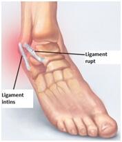 durere în ligamentele gleznei)